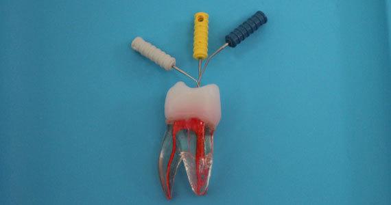 Endodontie (Wurzelbehandlung)